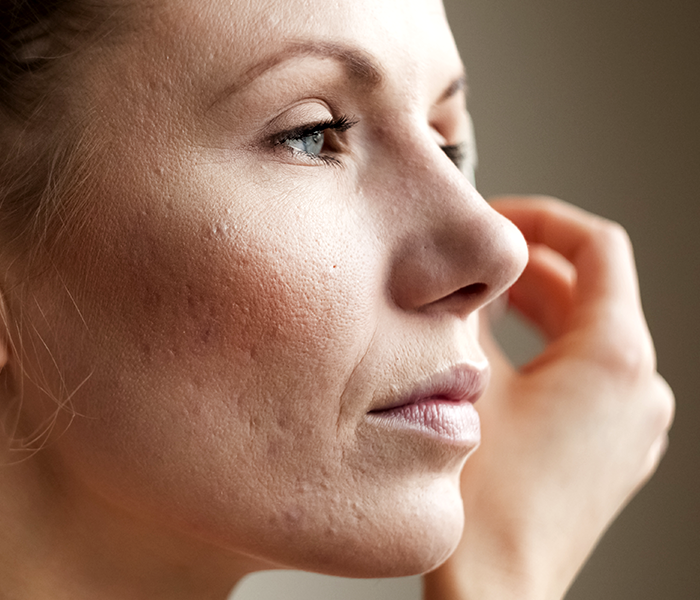 Everything You need to know about Open Pores.
