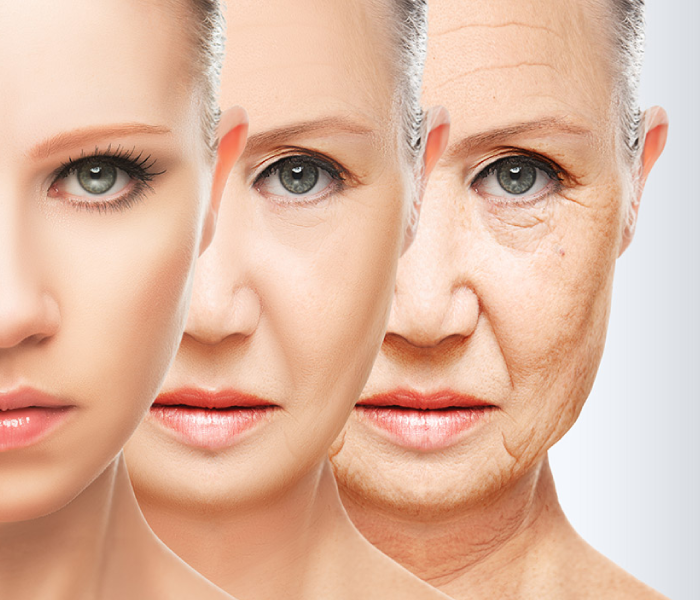 What speeds up the aging process?