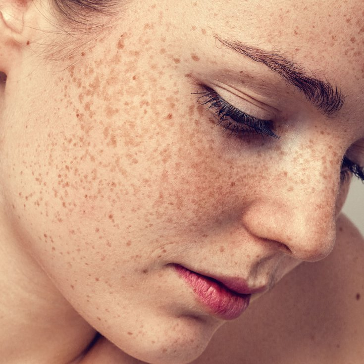 Common Forms Of Hyperpigmentation