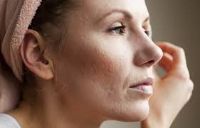 Adult acne : Why It Occurs & How To Prevent It